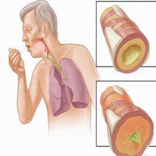 Điều trị viêm phế quản bằng đông trùng hạ thảo